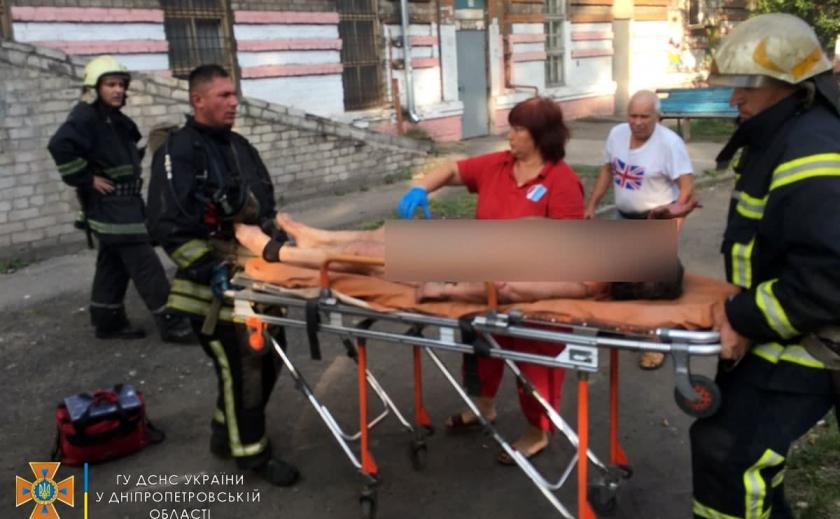 98% ожогов тела: в Каменском во время пожара пострадала женщина